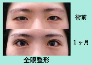 『目を大きくする!目の全方位フル施術その名も「 全眼整形 」』の画像