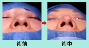 『鼻先を整える』の画像