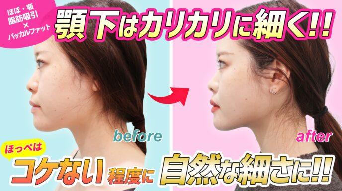 頬と顎下_脂肪吸引_バッカルファット除去