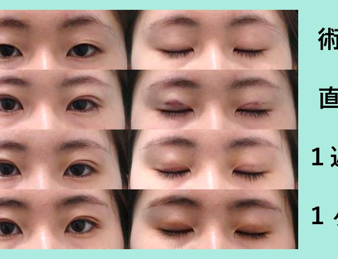二重・垂れ目形成の症例参考画像