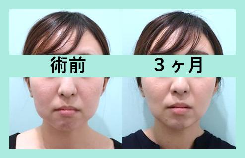 頬と顎下の脂肪吸引+糸リフト+頬こけ脂肪注入_術後3ヶ月ダウンタイム