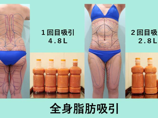 全身、太もも脂肪吸引_術前デザイン、取れた脂肪