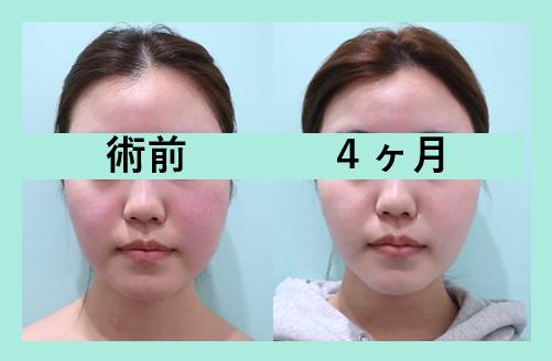 頬と顎下の脂肪吸引_術後4ヶ月
