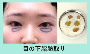 『目の下の脂肪取り』の画像