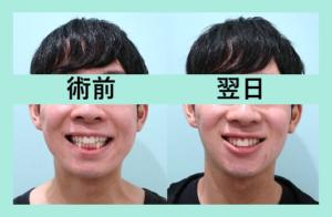 『顎が出るとイケメンになる!?』の画像