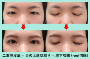 『眉下切開 + roof切除を併用してスッキリした二重に「二重組み合わせ治療」』の画像