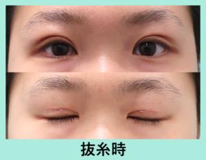 『眼瞼下垂治療で永久的なパッチリ二重に!!「二重全切開法+挙筋前転+脂肪取り」』の画像