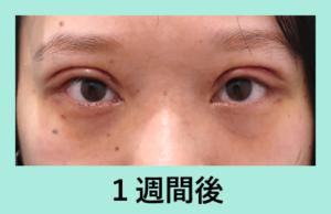 『目を大きくする!』の画像