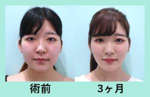 『小顔治療の最強セット! ビフォーアフター3人分まとめてご紹介』の画像