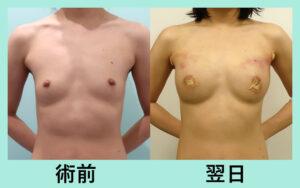 『CRF脂肪豊胸にて、自然な胸を作ります!』の画像