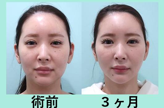 顎下広め脂肪吸引+糸リフト_術後3ヶ月ダウンタイム