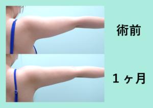 『美しく細くする「二の腕肩付け根の脂肪吸引」』の画像