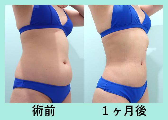 お腹、胸下、腰の脂肪吸引_術後1ヶ月ダウンタイム