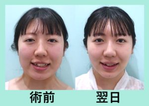 『糸リフトと脂肪吸引の併用は効果的です「小顔組み合わせ治療」』の画像