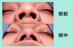 『人中短縮 と 小鼻縮小 の同時施術』の画像