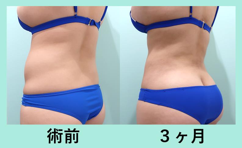 お腹、胸下、背中、腰の脂肪吸引_術後3ヶ月ダウンタイム