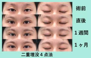 『くぼみ目を治す!』の画像