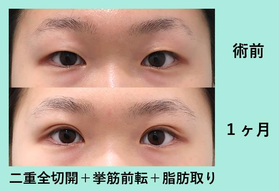 二重全切開挙筋短縮眼瞼下垂+目の上の脂肪取り_術後1ヶ月ダウンタイム