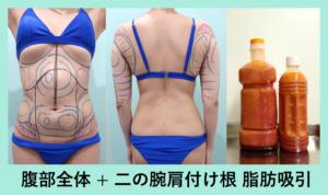 『広範囲脂肪吸引、衝撃の翌日! まとめて2例ご紹介します。』の画像