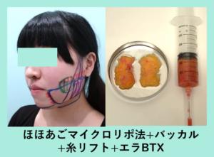 『丸顔の方は「脂肪吸引 と バッカル」両方必要です!』の画像