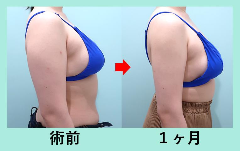 二の腕肩付け根脂肪吸引+ベイザー_術後1ヶ月ダウンタイム、弛まない