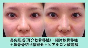 『変形した鼻尖を鼻柱に「軟骨ストラット」で真っ直ぐな鼻に!』の画像
