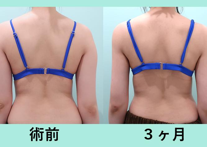 二の腕、副乳脂肪吸引+ベイザー_術後3ヶ月ダウンタイム、弛まない