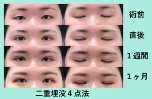 『腫れぼったい瞼をきれいな目元にするには!?』の画像
