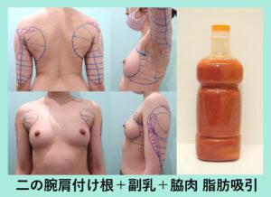 『芸術的な二の腕、肩の付け根周りを削り出します!』の画像