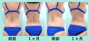 『腹部~腰の芸術的な脂肪吸引とコンデンスリッチ(CRF)豊胸』の画像