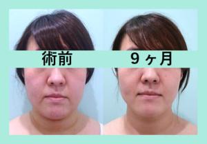 『脂肪吸引量「 少なめ / 多め / 標準 」果たして結果の違いは!?3人分まとめてご紹介』の画像
