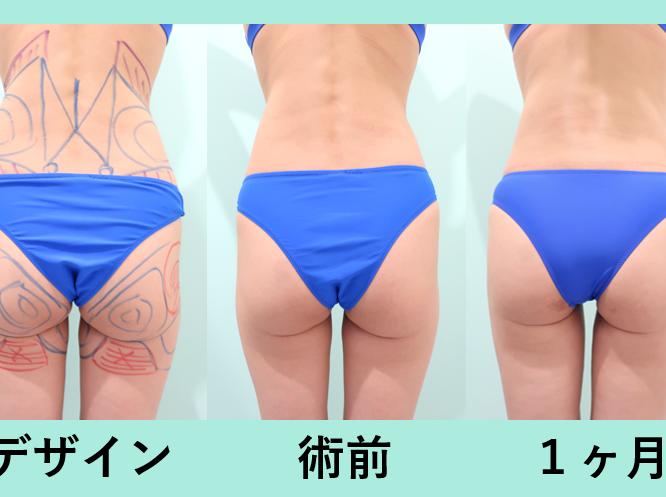 太もも脂肪吸引、お尻脂肪吸引_術後1ヶ月ダウンタイム、自然