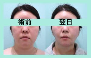 『「 顔の脂肪吸引+バッカル 」の施術翌日の経過を3人分まとめてご紹介!』の画像