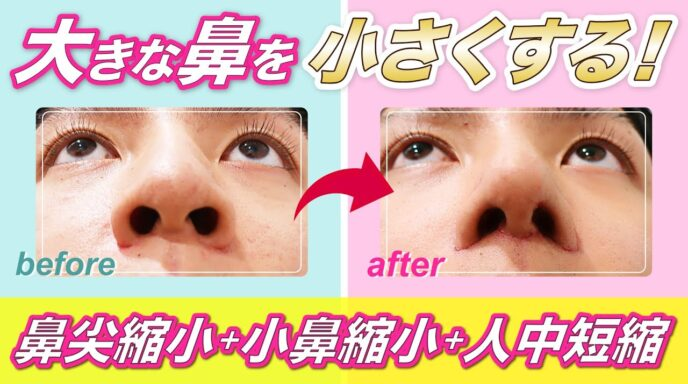 鼻と頬_鼻尖縮小_小鼻縮小_WOM式人中短縮術