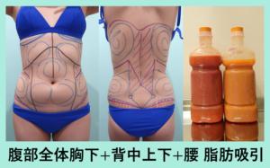 『広範囲脂肪吸引で一気にスッキリボディに!』の画像