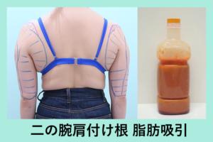 『がっつり吸引してもタルミなし!「二の腕肩付け根の脂肪吸引」』の画像