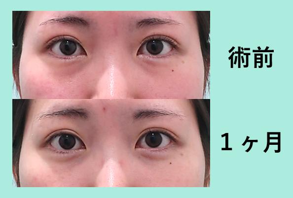 クマ とり の 目の下 種類と原因に合わせたクマ治療で明るい目元に:高須クリニック