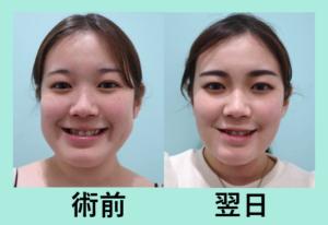 『施術翌日の経過を3名まとめてご紹介、圧倒的に腫れが少ない小顔治療に自信があります』の画像