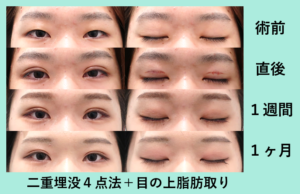 『目の上の脂肪をガッツリ取るとどれくらいスッキリする?』の画像