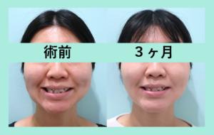 『変化量は ひとそれぞれ 「小顔組み合わせ治療」』の画像