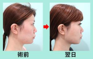 『内出血・腫れがほとんどない「 顔の脂肪吸引+糸リフト 」セット治療、施術翌日の経過を3人分まとめてご紹介』の画像