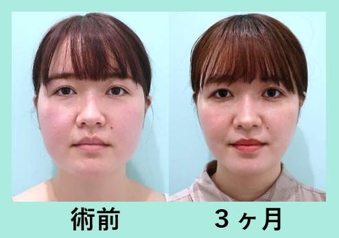 頬と顎下の脂肪吸引+エラボトックス_術後3ヶ月ダウンタイム、ベイザー
