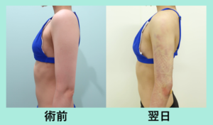 『手術の翌日が凄すぎる!!「 二の腕肩付け根の脂肪吸引 」』の画像