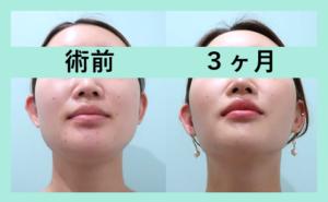 『「 脂肪吸引+エラボトックス 」で洗練された輪郭に!3人分まとめてご紹介』の画像