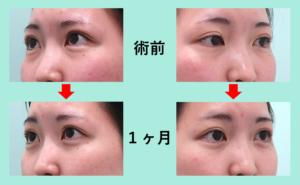 『涙袋の形が分かりやすくなる「目の下脂肪取り」』の画像
