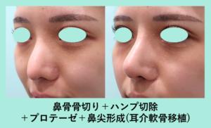 『鼻手術のフルメニューで、人生が変わるほどの劇的変化が可能です!!』の画像