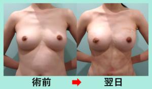 『「 ボンキュッボン 」のプロポーションを作る! 腹部全体胸下吸引+コンデンスリッチ豊胸』の画像