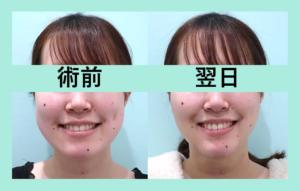 『小顔治療 気になるダウンタイムは?』の画像