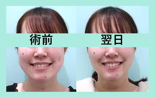 頬と顎下の脂肪吸引+糸リフト_術後翌日ダウンタイム