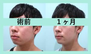 『顎プロテーゼを挿入してイケメンになった1ヶ月後をご紹介します!』の画像